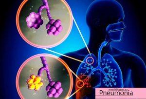 Pneumonia with coronavirus